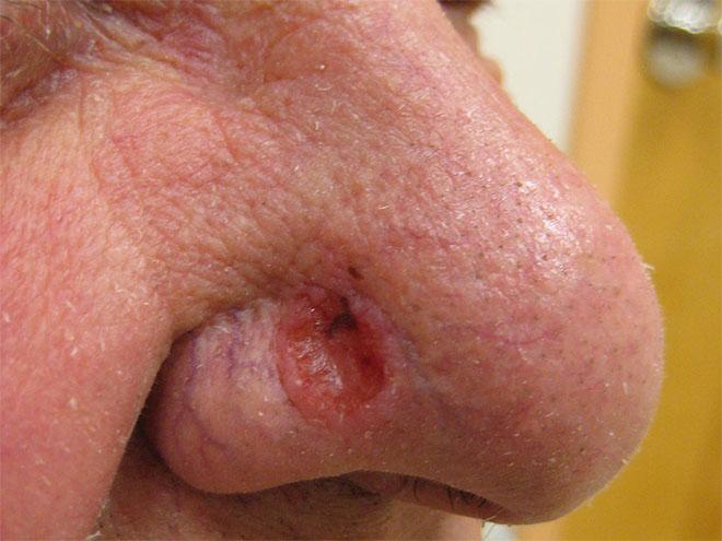 Базалиома кожи носа