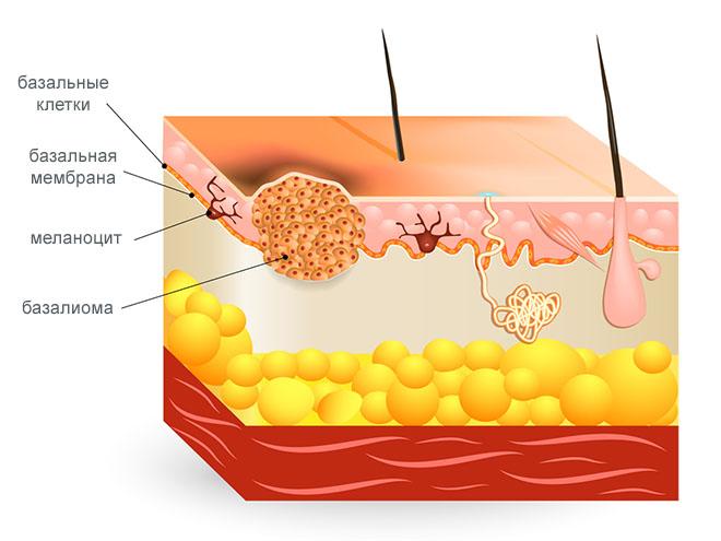 Схема формирования базалиомы кожи