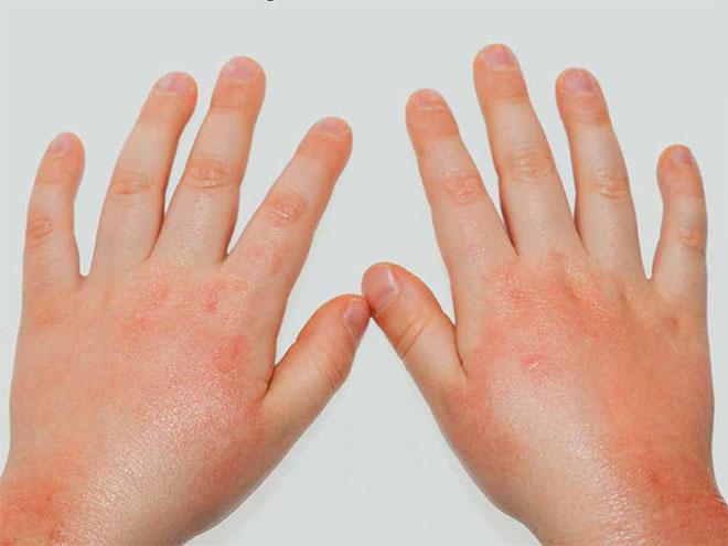 Лечение грибковых поражений кожи